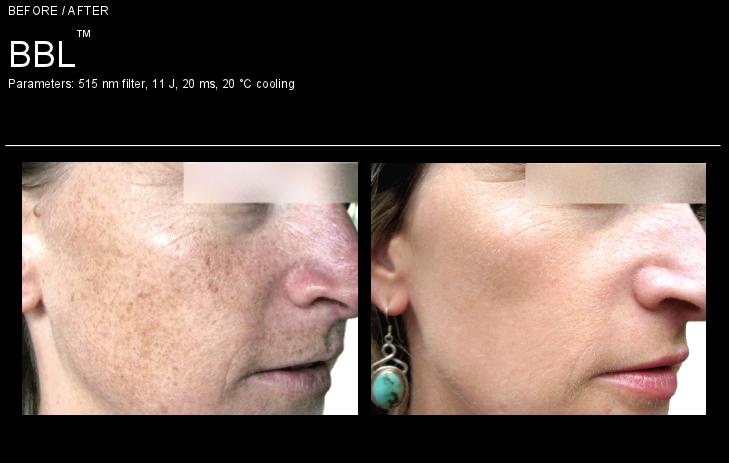 bbl-skin-pigmentation